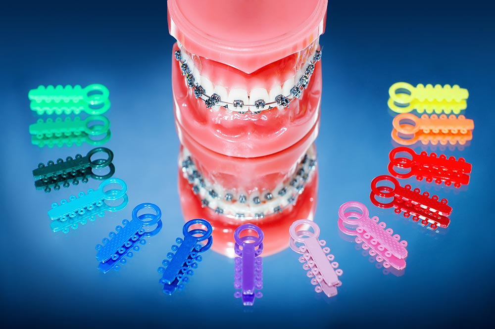 best-orthodontist-bucks-county-pa-braces-dentist