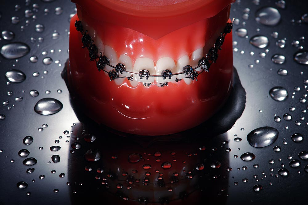 best-orthodontist-ottsville-pa-braces-dentist