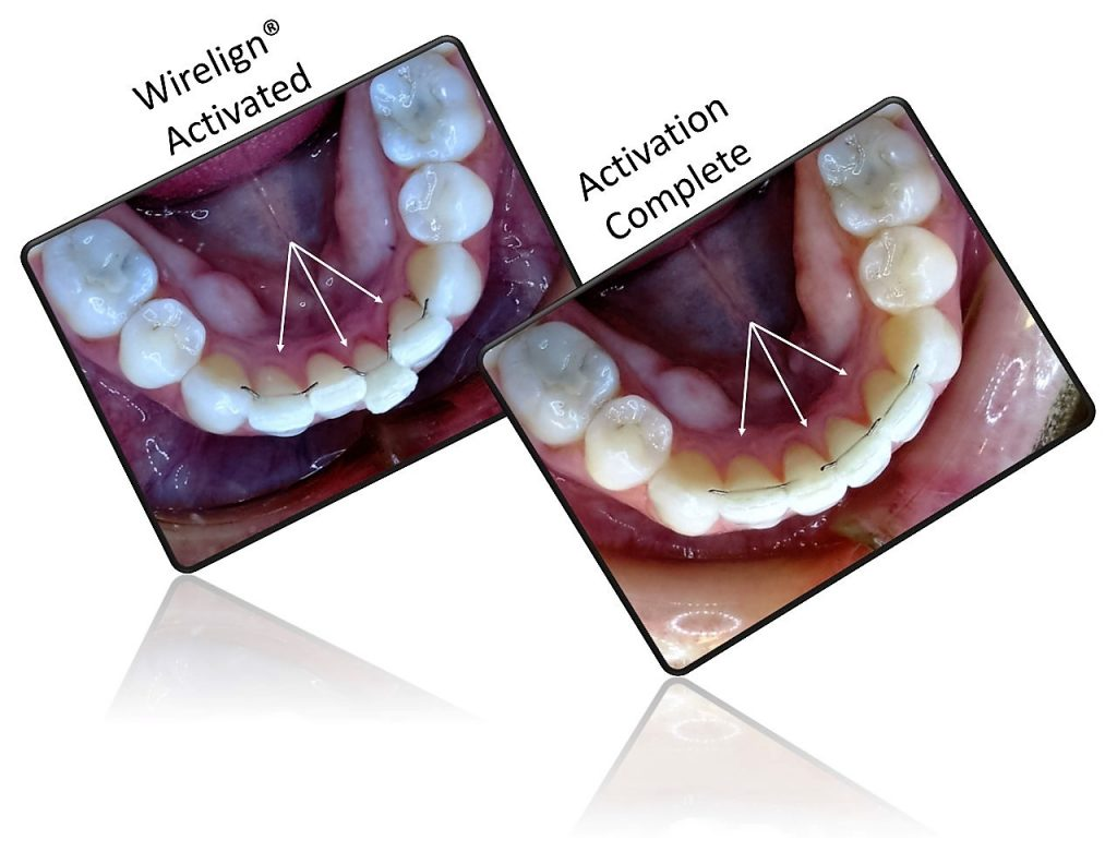 wirelign-invilible-orthodontic-better-than-invisalign